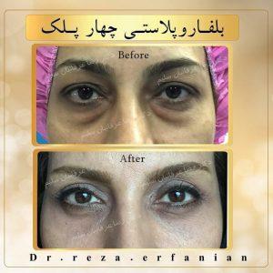 جراحی زیبایی چشم (بلفاروپلاستی) چهار پلک