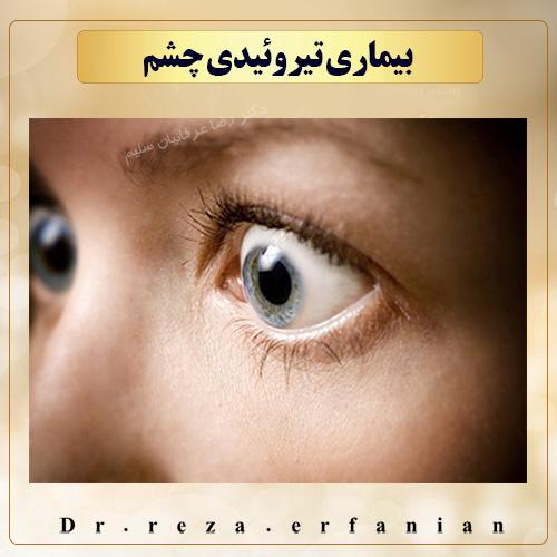 بیماری تیروئیدی چشم