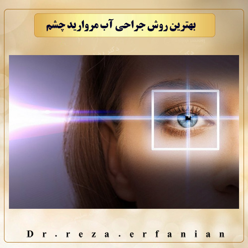 بهترین روش جراحی آب مروارید چشم