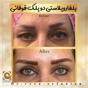 نمونه جراحی افتادگی دو پلک بالایی دکتر عرفانیان